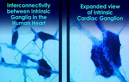 interconnected intrinsic cardiac ganglia - 420×315